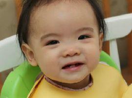 Bệnh răng miệng phổ biến ở trẻ