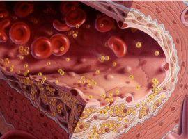 Giải pháp cho bệnh mỡ máu cao