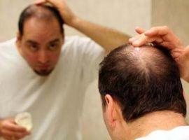 Rụng tóc nhiều: phải làm sao?