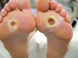 Phòng tránh biến chứng loét bàn chân của bệnh nhân tiểu đường
