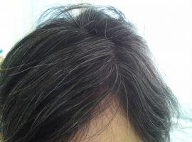 Hỏi: Dùng BoniHair 6 tháng chân tóc đã đổi màu, tôi có tiếp tục uống BoniHair nữa hay không?