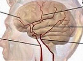 Bạn biết gì về tai biến mạch máu não?