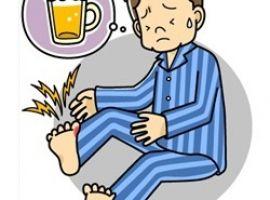 Bia rượu- kẻ thù của bệnh nhân gút