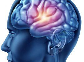 Hỏi: Cháu bị thiểu năng tuần hoàn não thì uống thuốc gì?