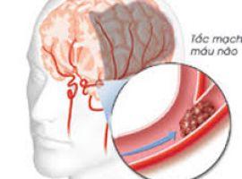 Hỏi: Mẹ tôi bị tai biến vẫn còn cục máu đông trong não?