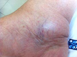 Hỏi: Chân bị phù, có phải dấu hiệu của bệnh suy giãn tĩnh mạch chân?