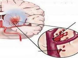 Hỏi: Thành mạch rất yếu, đã bị xuất huyết não 1 lần?