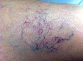 Hỏi: Chân chỉ nổi gân xanh tím có dùng được BoniVein hay không?