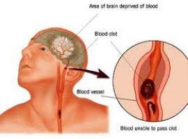 Chuẩn đoán bệnh tai biến mạch máu não