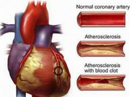 Hút thuốc lá và bệnh mạch vành
