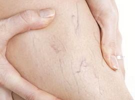 Những hiểu nhầm về bệnh suy giãn tĩnh mạch