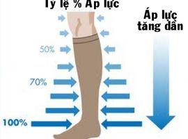 Thận trọng khi dùng tất áp lực chữa giãn tĩnh mạch chân