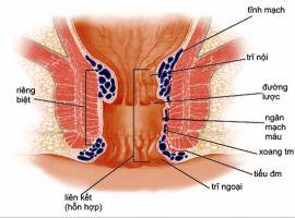 Triệu chứng nhận biết bệnh trĩ nội