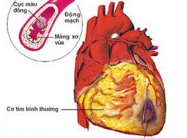 Xơ vữa động mạch- kẻ giết người thầm lặng