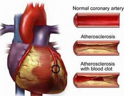 Ảnh hưởng của thuốc lá và bệnh mạch vành