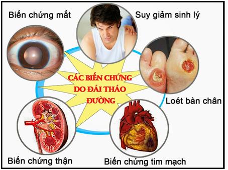 5 bộ phận bị ảnh hưởng nhiều nhất khi mắc bệnh tiểu đường