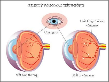 Biến chứng trên mắt ở bệnh nhân tiểu đường