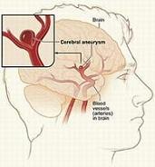 Đột quỵ não - kết cục buồn của người tăng huyết áp