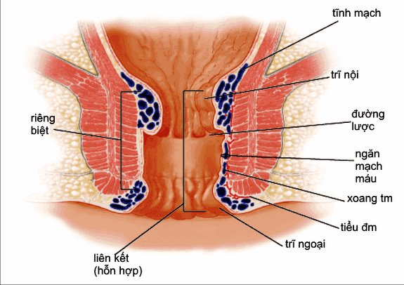 Nhận biết bệnh trĩ nội và trĩ ngoại